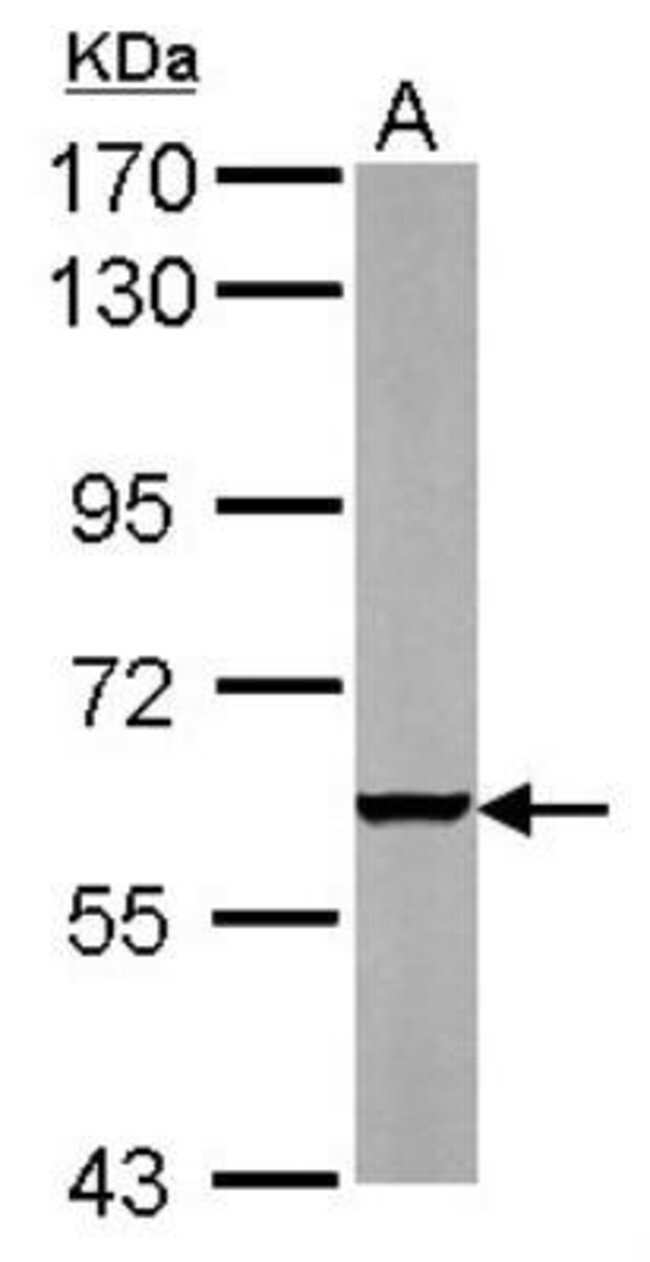 anti-PARP3, Polyclonal, Novus Biologicals 0.1mg; Unlabeled:Life Sciences