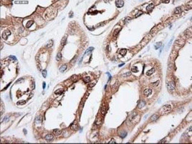 Patched 1/PTCH Mouse anti-Human, Clone: OTI5C7, Novus Biologicals 0.1mL;