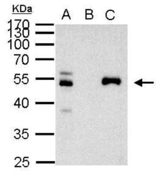 anti-PAX8, Polyclonal, Novus Biologicals 0.1mg; Unlabeled:Life Sciences