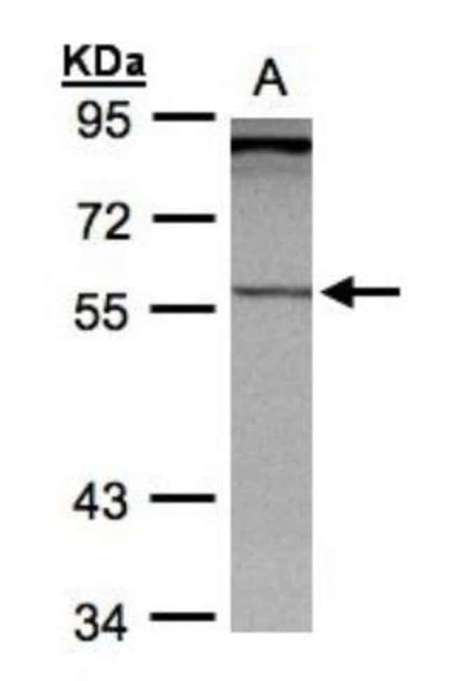 anti-PCCB, Polyclonal, Novus Biologicals 0.1mL; Unlabeled:Life Sciences