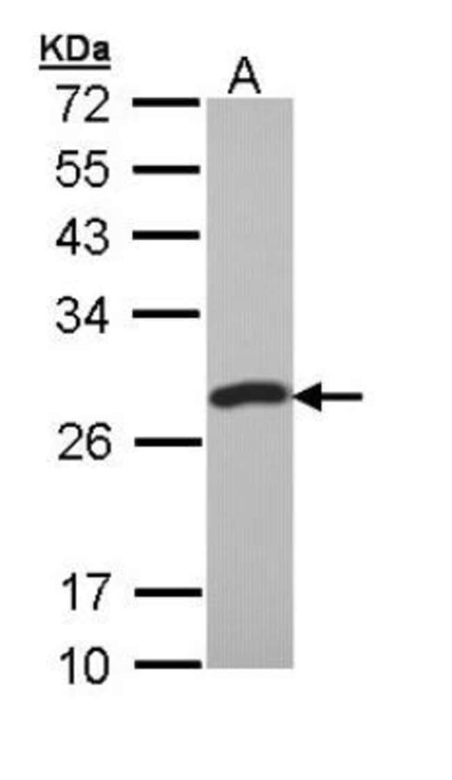 anti-PCMT1, Polyclonal, Novus Biologicals 0.1mL; Unlabeled:Life Sciences