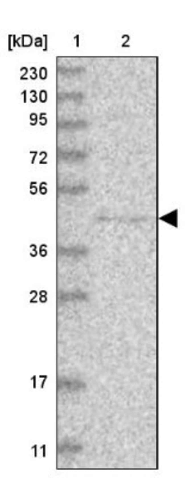 anti-PCMTD1, Polyclonal, Novus Biologicals 0.1mL; Unlabeled:Life Sciences