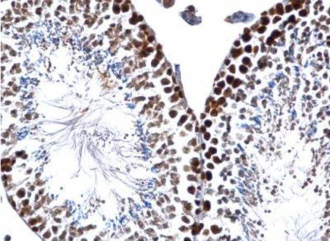 anti-PCNA, Polyclonal, Novus Biologicals 0.1mL; Unlabeled:Antibodies