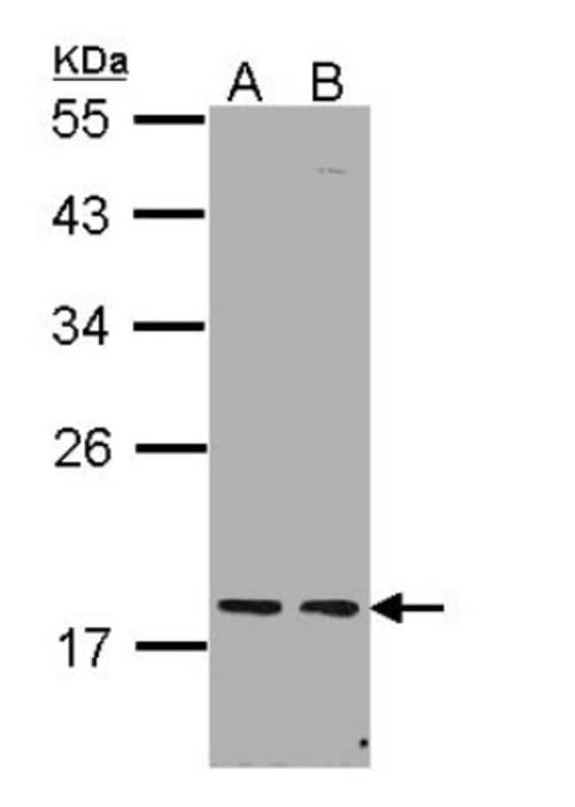 anti-PCNP, Polyclonal, Novus Biologicals 0.1mg; Unlabeled:Life Sciences