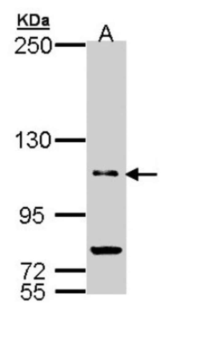 anti-PDE11A, Polyclonal, Novus Biologicals 0.1mg; Unlabeled:Life Sciences