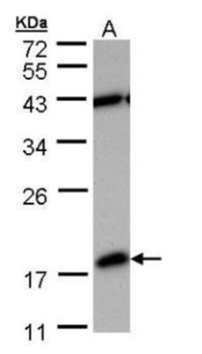 anti-PDE6D, Polyclonal, Novus Biologicals 0.1mg; Unlabeled:Life Sciences