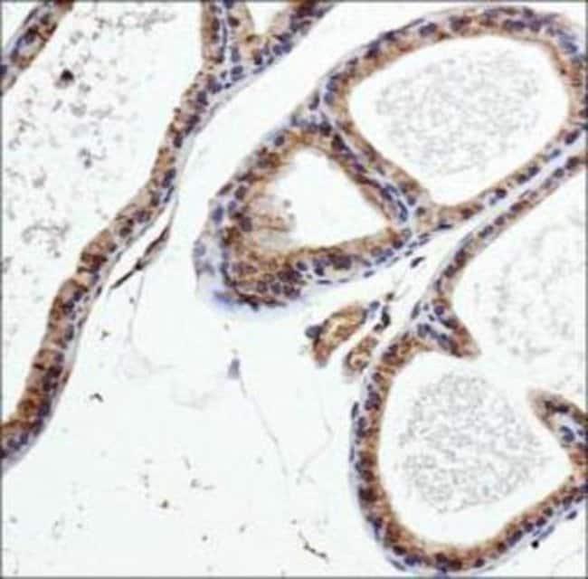 anti-PDE9A, Polyclonal, Novus Biologicals:Antibodies:Primary Antibodies