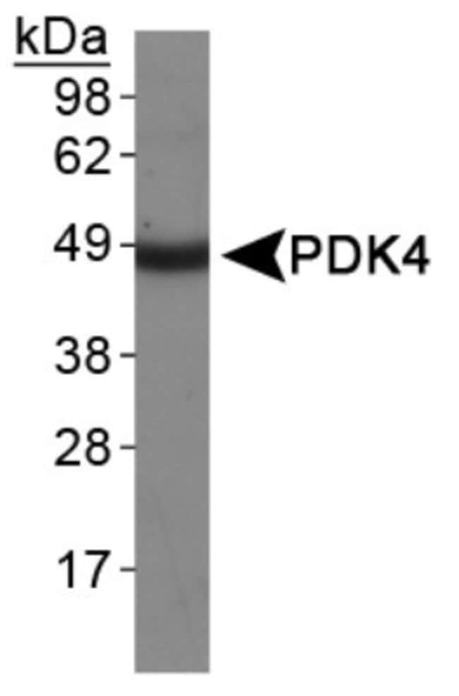 anti-PDK4, Polyclonal, Novus Biologicals:Antibodies:Primary Antibodies