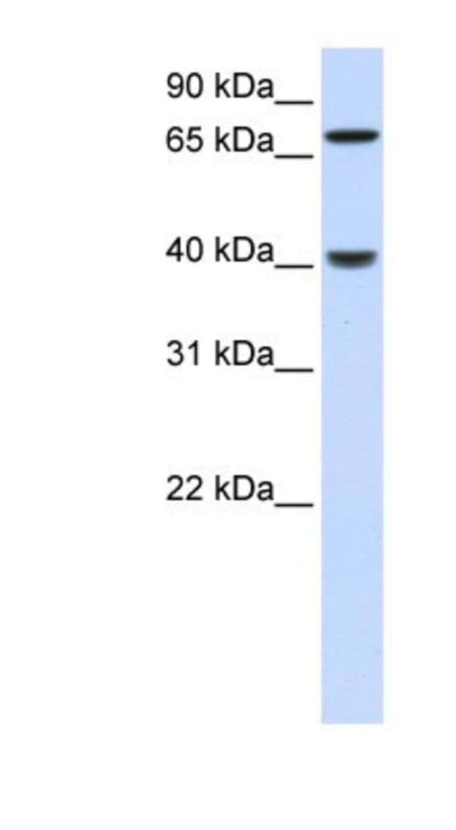 PDLIM3 Rabbit anti-Human, Polyclonal, Novus Biologicals 100µL; Unlabeled:Life