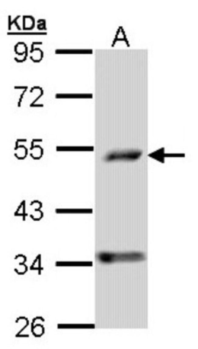 anti-PDSS2, Polyclonal, Novus Biologicals 0.1mL; Unlabeled:Life Sciences