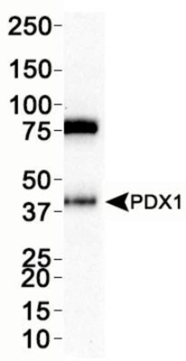 anti-PDX-1/IPF1, Polyclonal, Novus Biologicals:Antibodies:Primary Antibodies
