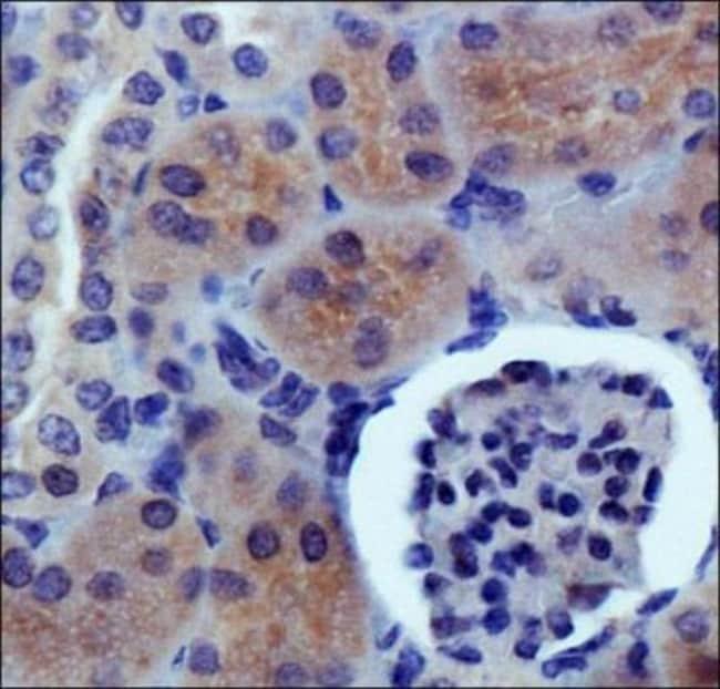 anti-PDZK1, Polyclonal, Novus Biologicals:Antibodies:Primary Antibodies