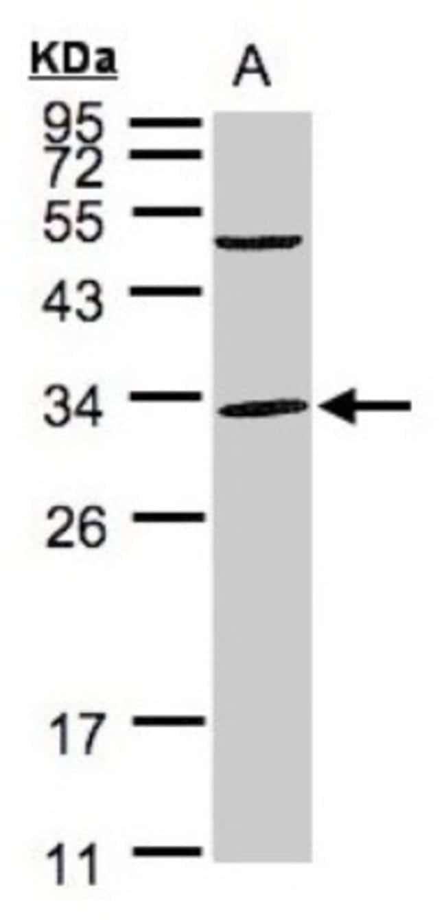 anti-Peflin, Polyclonal, Novus Biologicals 0.1mg; Unlabeled:Life Sciences