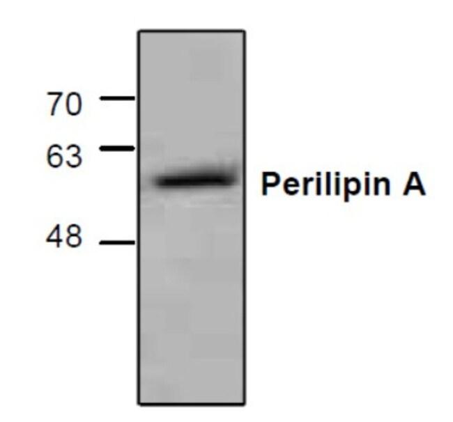 anti-Perilipin, Polyclonal, Novus Biologicals 0.2mg; Unlabeled:Life Sciences