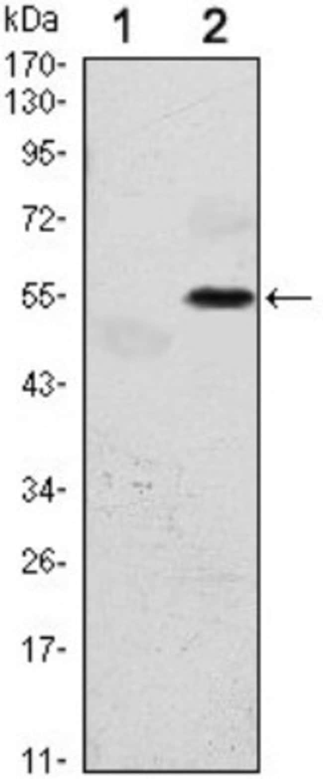 anti-PERK, Clone: 5G5, Novus Biologicals 0.1mL; Unlabeled:Life Sciences