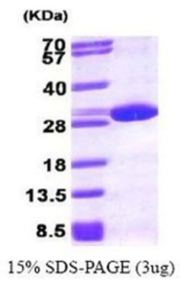 Novus Biologicals Peroxiredoxin 6 Recombinant Protein 0.1mg:Life Sciences
