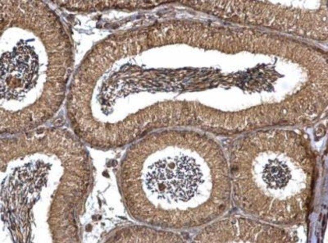 anti-PEX19, Polyclonal, Novus Biologicals 0.1mL; Unlabeled:Life Sciences