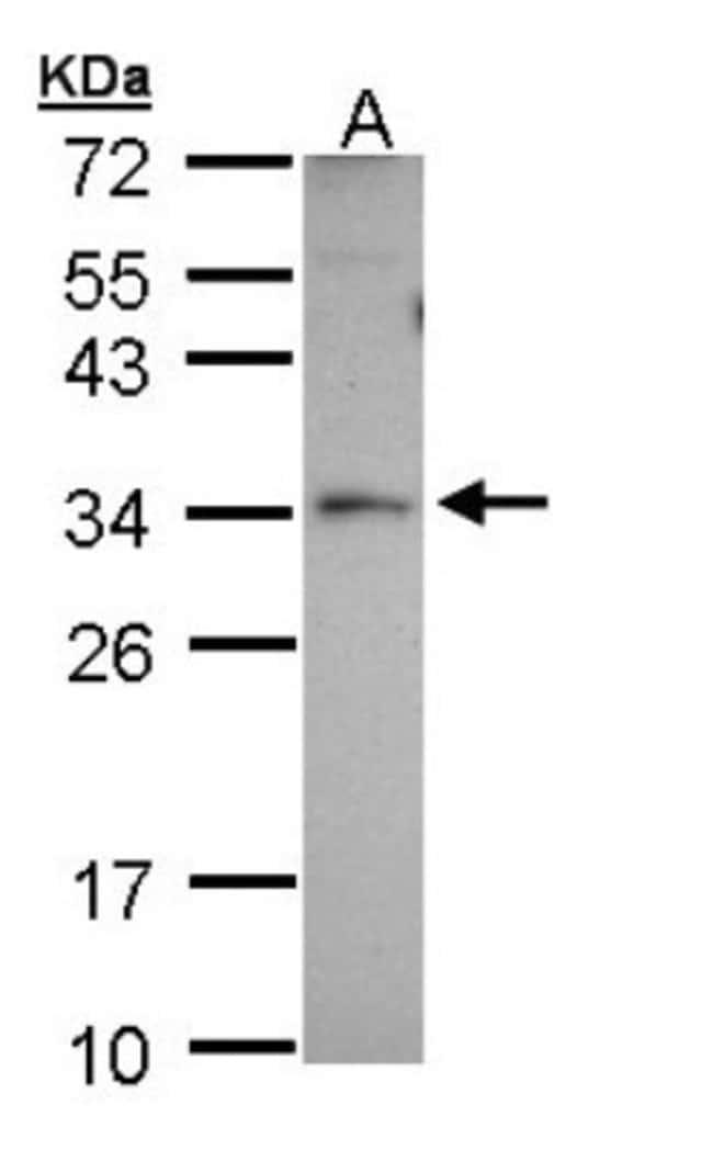 anti-PEX26, Polyclonal, Novus Biologicals 0.1mg; Unlabeled:Antibodies