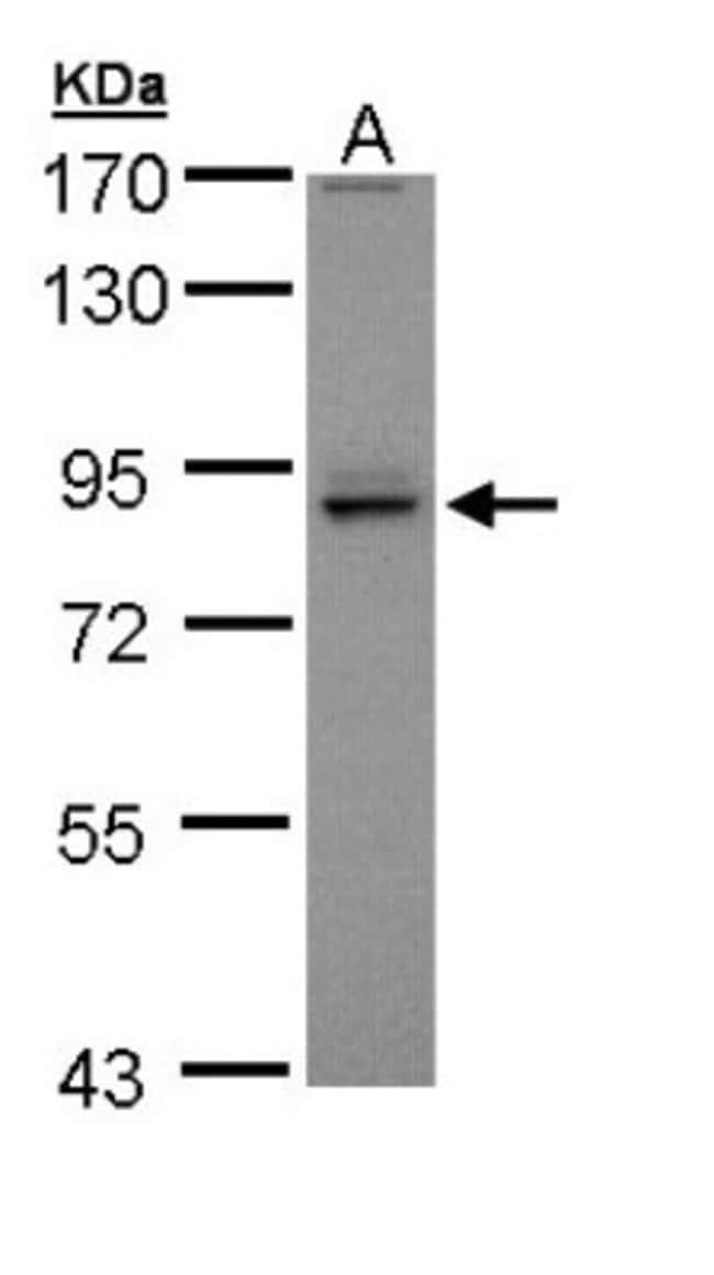 anti-PEX5, Polyclonal, Novus Biologicals 0.1mg; Unlabeled:Life Sciences