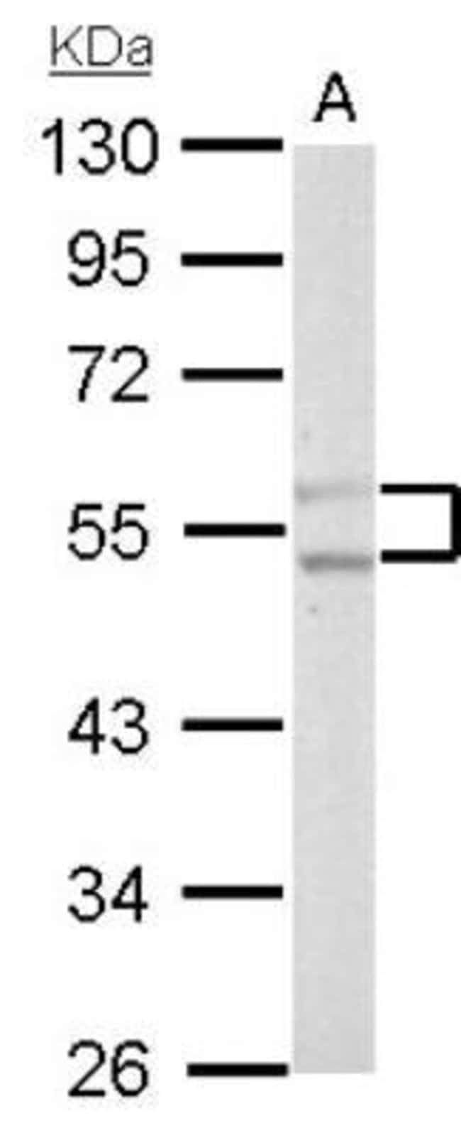 anti-PFKFB4, Polyclonal, Novus Biologicals 0.1mL; Unlabeled:Life Sciences