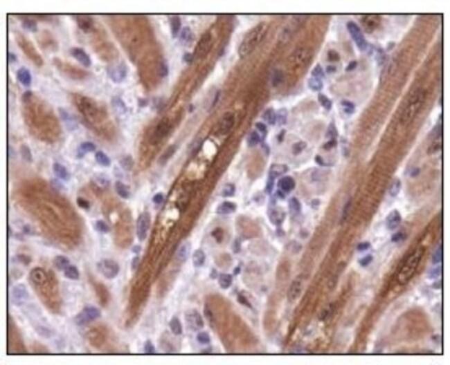 anti-PGAM1, Polyclonal, Novus Biologicals:Antibodies:Primary Antibodies