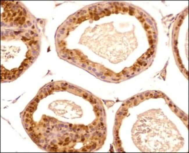 anti-PGC1 alpha, Polyclonal, Novus Biologicals:Antibodies:Primary Antibodies