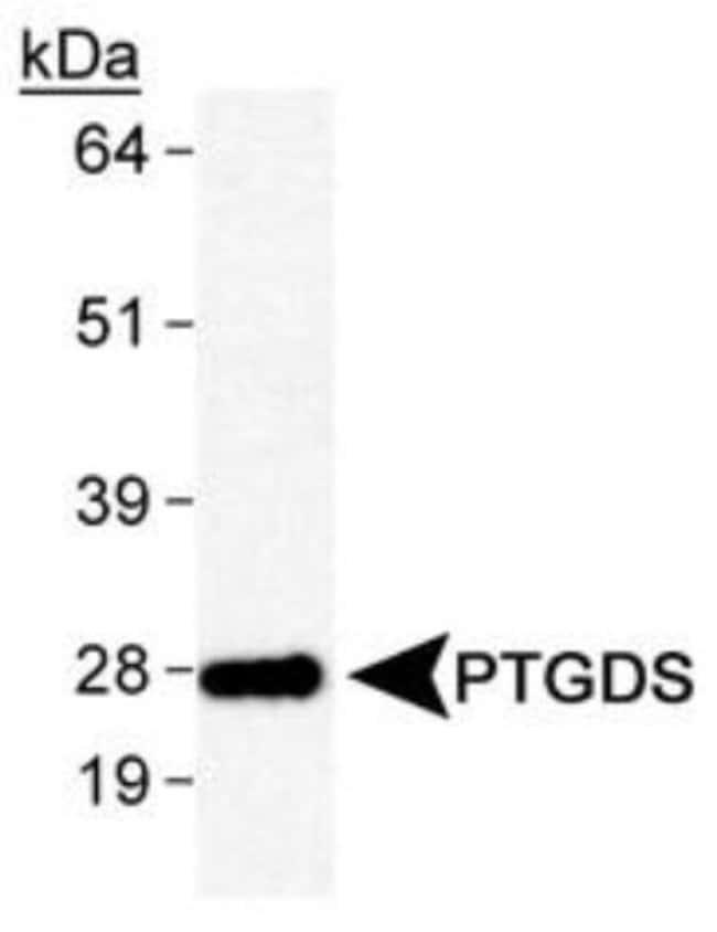 anti-PGD2 Synthase/PTGDS, Polyclonal, Novus Biologicals:Antibodies:Primary
