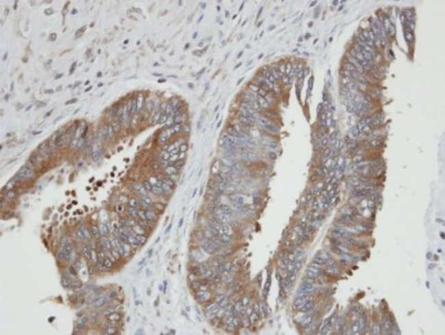 anti-PGK2, Polyclonal, Novus Biologicals 0.1mL; Unlabeled:Antibodies