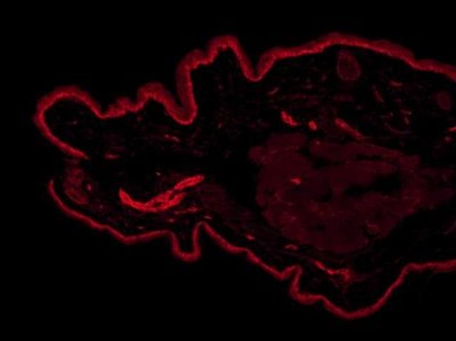 anti-PGP9.5 / UCHL-1, Polyclonal, Novus Biologicals:Antibodies:Primary