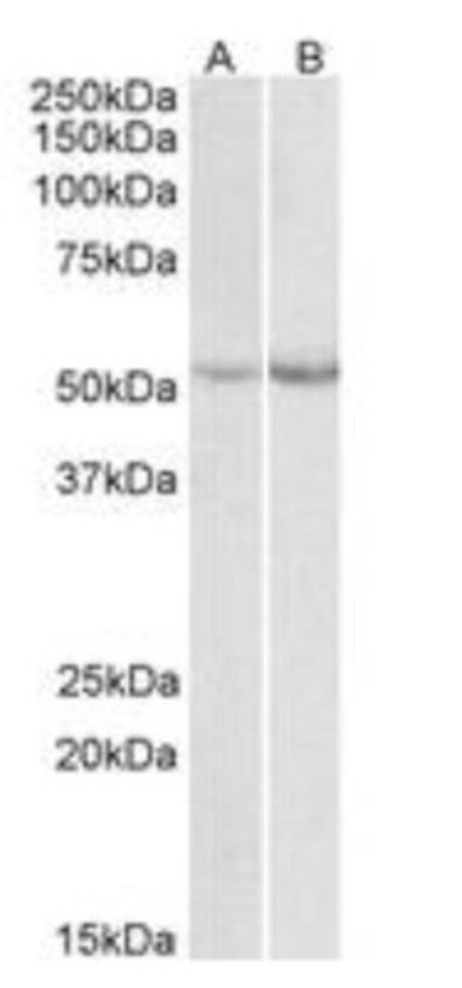 anti-Phenylalanine Hydroxylase, Polyclonal, Novus Biologicals 0.1mg; Unlabeled:Life