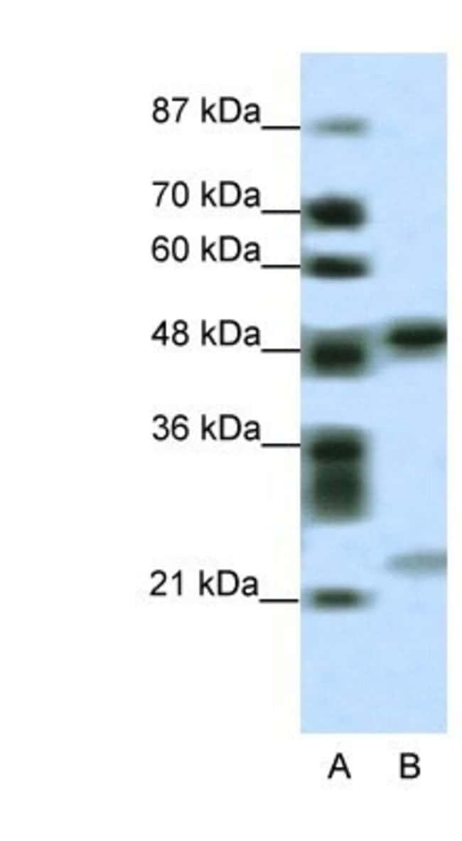 PHF11 Rabbit anti-Human, Polyclonal, Novus Biologicals 20µL; Unlabeled
