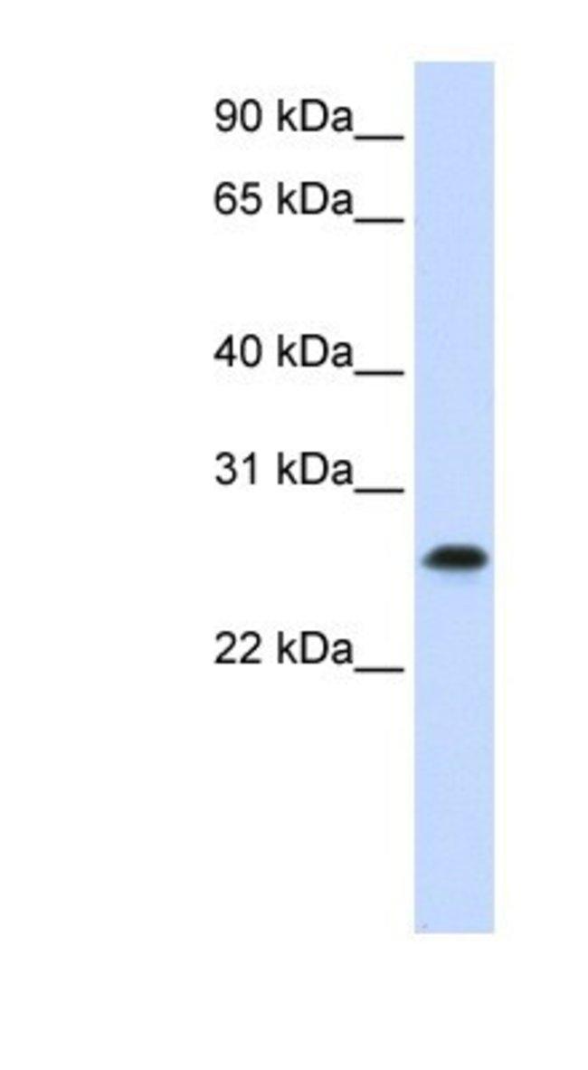 PHF19 Rabbit anti-Human, Polyclonal, Novus Biologicals 100µL; Unlabeled:Life