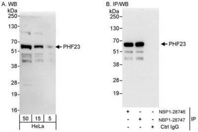 anti-PHF23, Polyclonal, Novus Biologicals 0.1mg; Unlabeled:Life Sciences