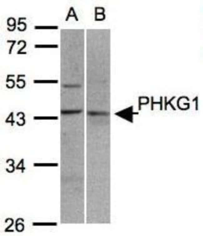 anti-PHKG1, Polyclonal, Novus Biologicals 0.1mg; Unlabeled:Life Sciences