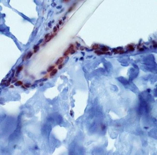 anti-PIEZO2, Polyclonal, Novus Biologicals:Antibodies:Primary Antibodies