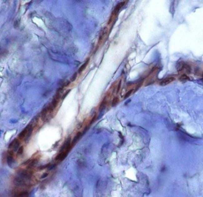 anti-PIEZO2, Polyclonal, Novus Biologicals 0.1mL; Unlabeled:Life Sciences