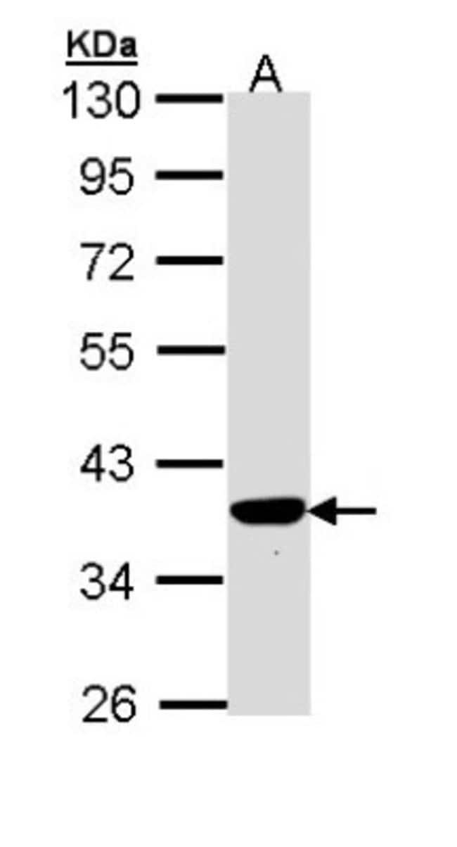 anti-PIG3, Polyclonal, Novus Biologicals 0.1mg; Unlabeled:Life Sciences