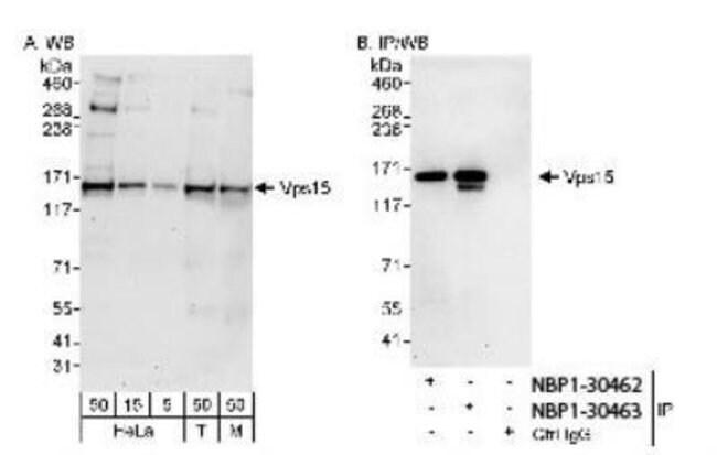 anti-PIK3R4, Polyclonal, Novus Biologicals 0.1mL; Unlabeled:Life Sciences