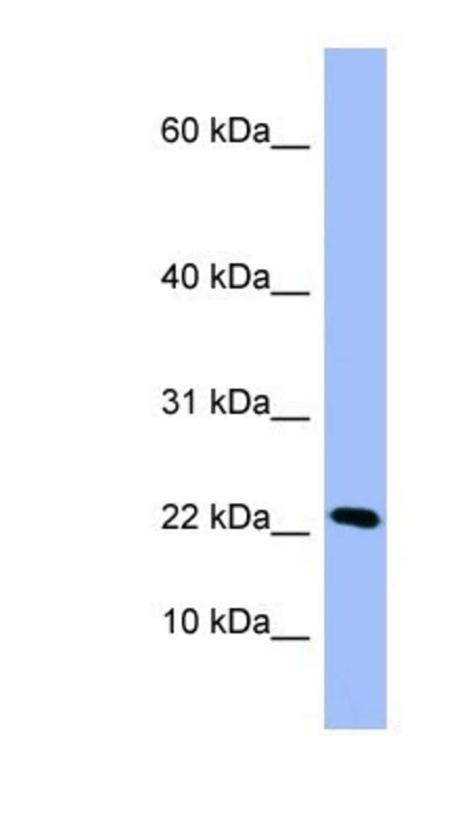 PIN4 Rabbit anti-Human, Polyclonal, Novus Biologicals 20µL; Unlabeled
