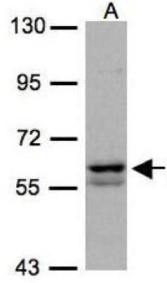 anti-PKLR, Polyclonal, Novus Biologicals 0.1mL; Unlabeled:Life Sciences