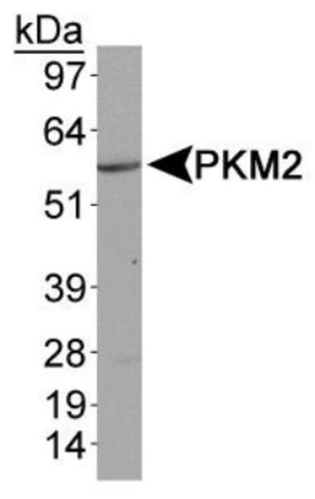 anti-PKM2, Polyclonal, Novus Biologicals:Antibodies:Primary Antibodies