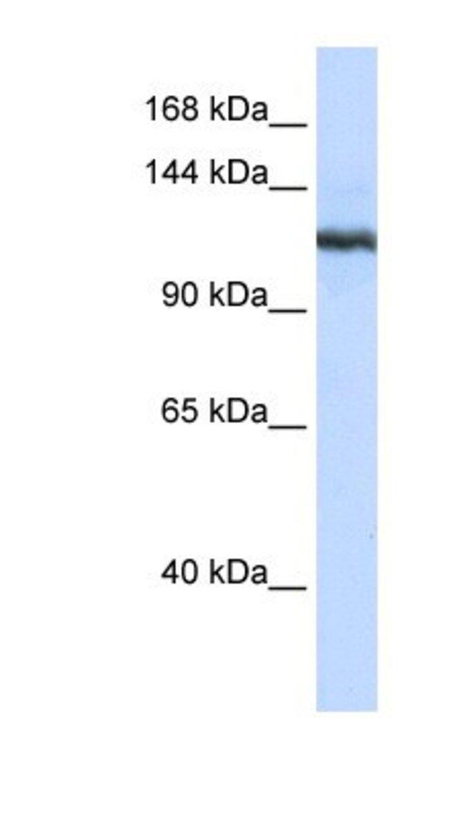 PLA2G4B Rabbit anti-Human, Polyclonal, Novus Biologicals 100µL; Unlabeled:Life