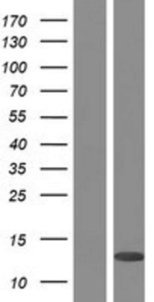 Novus BiologicalsPLAC8 Overexpression Lysate (Native) 0.1mg:Protein Analysis