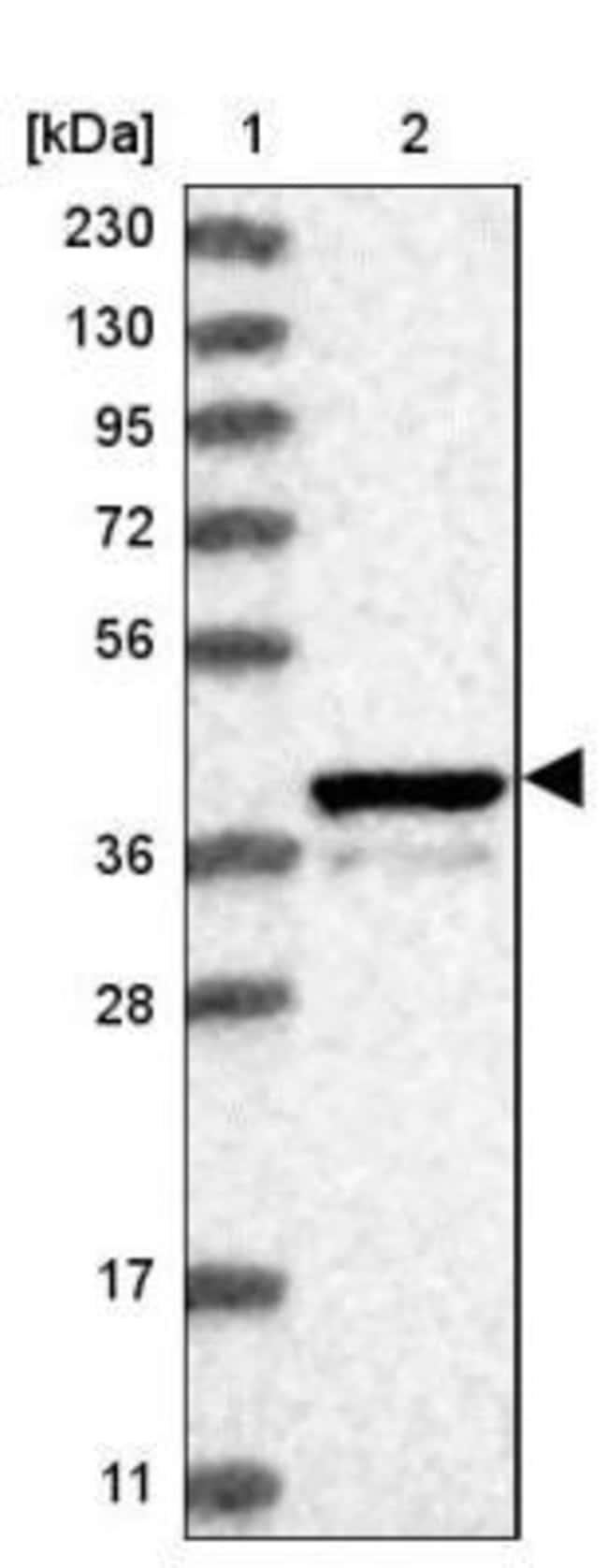 anti-PLEKHA3, Polyclonal, Novus Biologicals 0.1mL; Unlabeled:Life Sciences