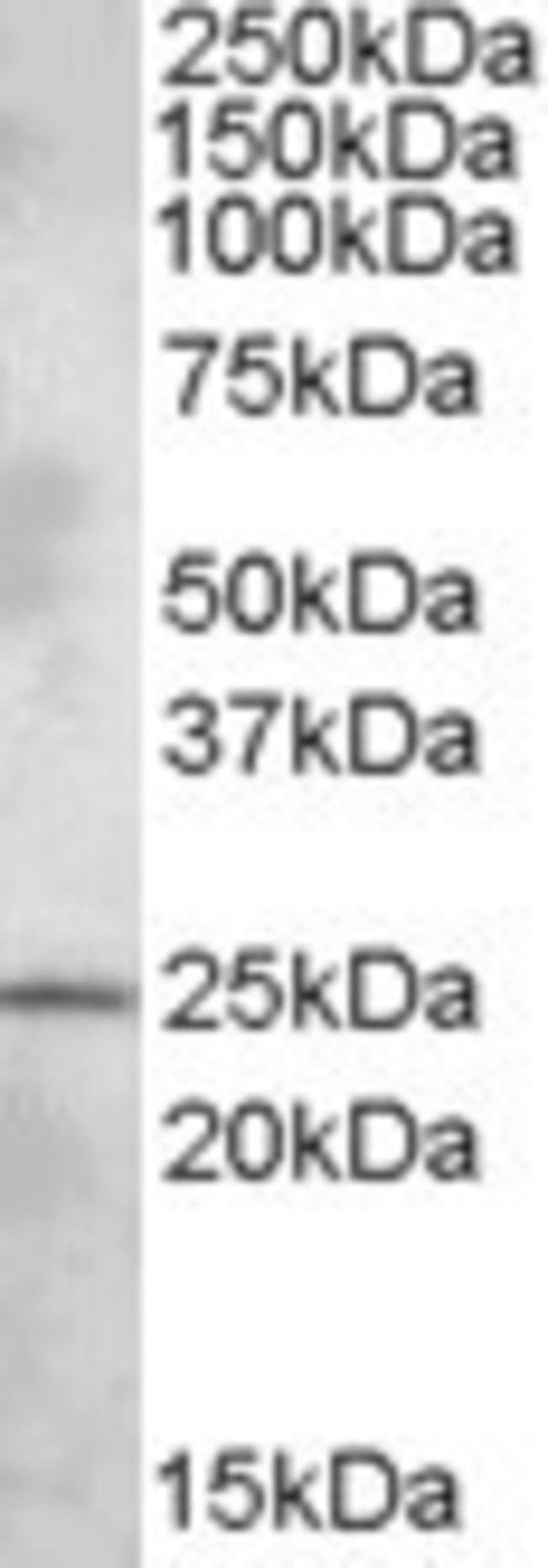 anti-PLEKHB1/PHR1, Polyclonal, Novus Biologicals 0.1mg; Unlabeled:Life