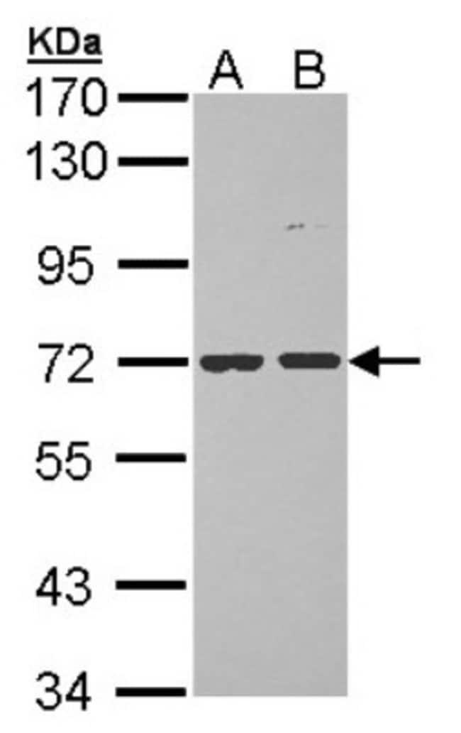 anti-POMGNT1, Polyclonal, Novus Biologicals 0.1mL; Unlabeled:Life Sciences