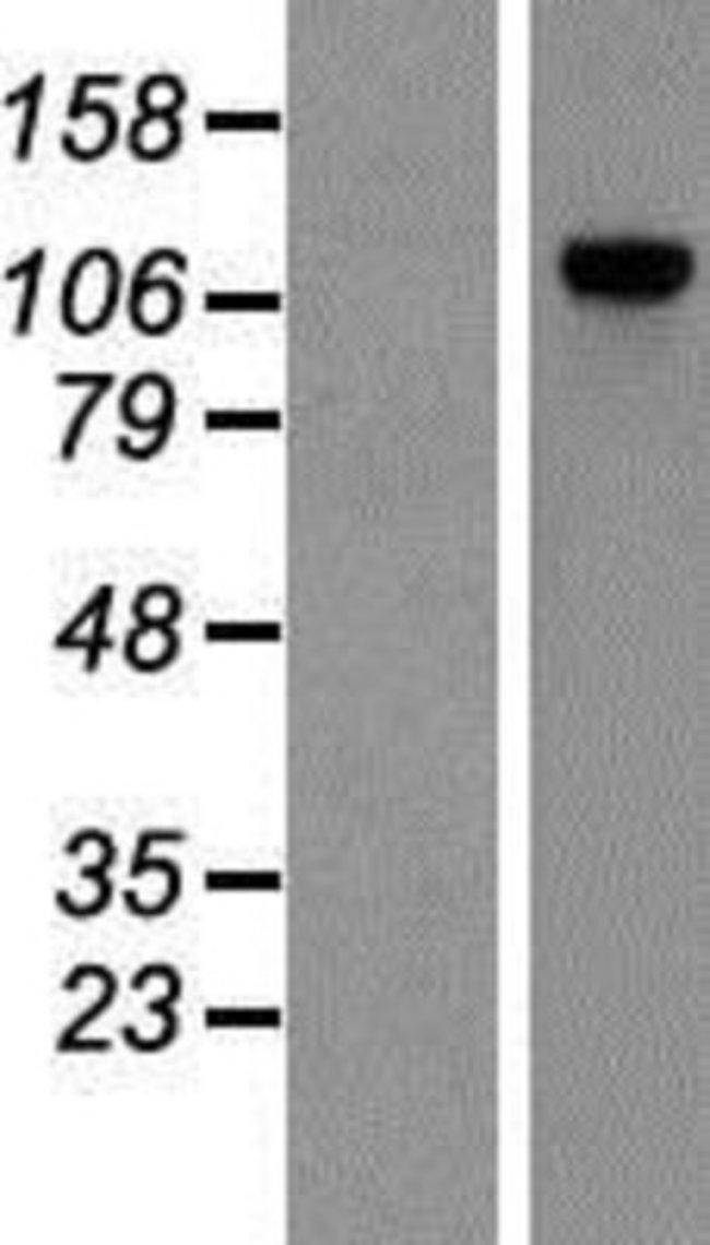 Novus Biologicals POP1 Overexpression Lysate (Native) 0.1mg:Life Sciences