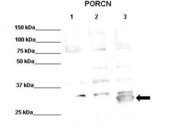 PORCN Rabbit anti-Human, Mouse, Polyclonal, Novus Biologicals 100µL;