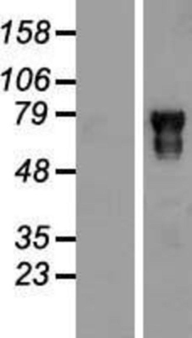 Novus Biologicals POU6F2 Overexpression Lysate (Native) 0.1mg:Life Sciences