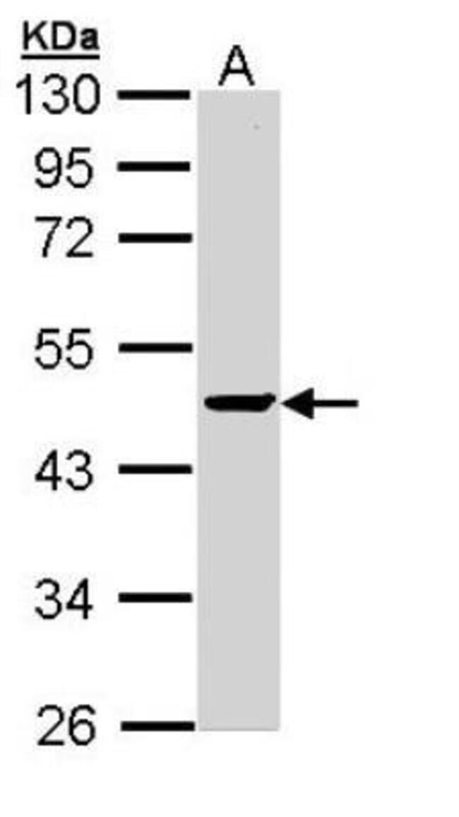 anti-PP2C alpha/PPM1A, Polyclonal, Novus Biologicals 0.1mg; Unlabeled:Life